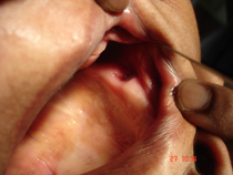 hole_seen_inside_patients_mouth