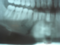radiograph_showing_fracture_of_jaw